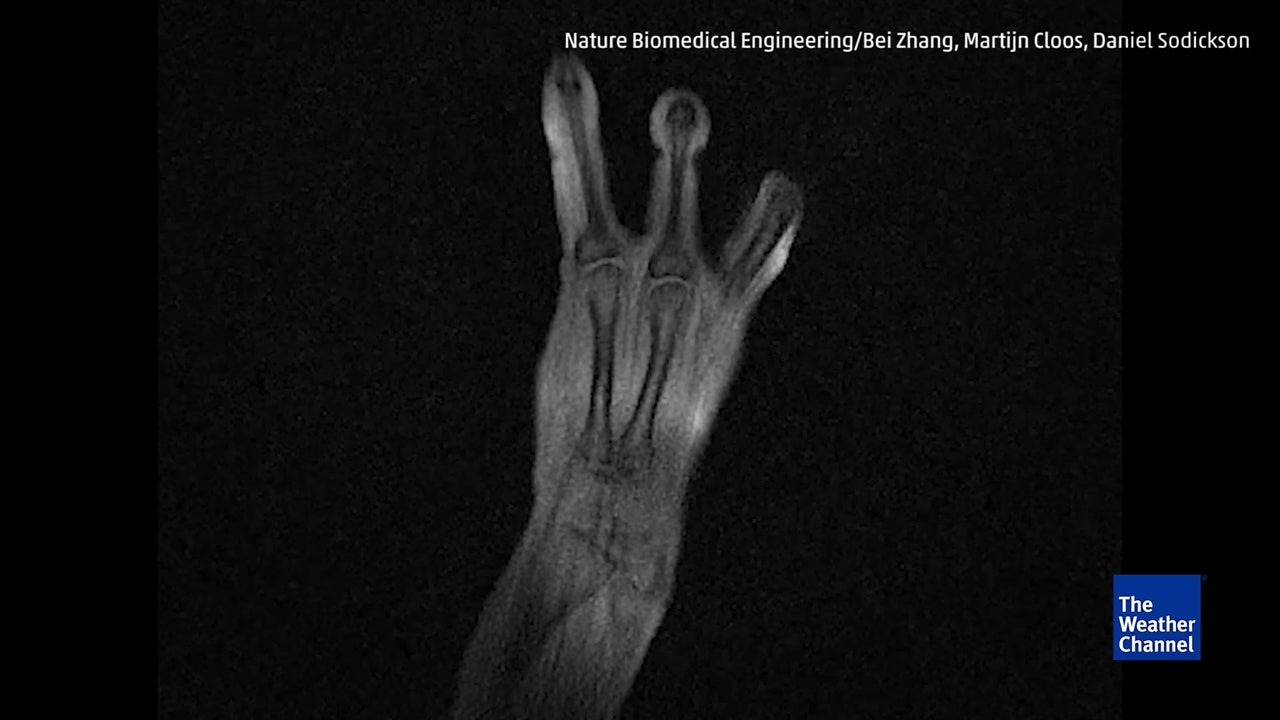 MRI Glove Captures Bones in Motion - Rockets Are Cool 2018-05-23 02:00