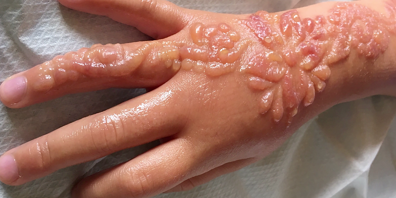 Alptraum-Souvenir: Siebenjährige bekommt chemische Verbrennungen durch Henna-Tattoo